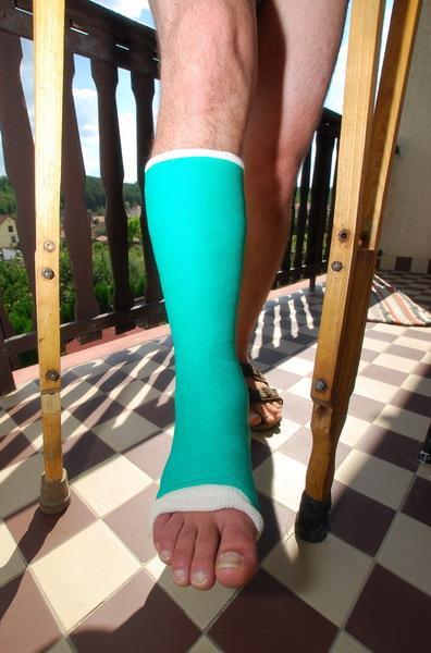 lábközépcsont törés gipszlevétel után ízületi gyulladás ár