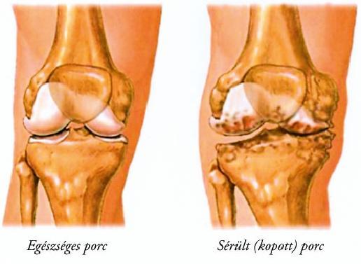 artrózis kezelése a kárpátalján)